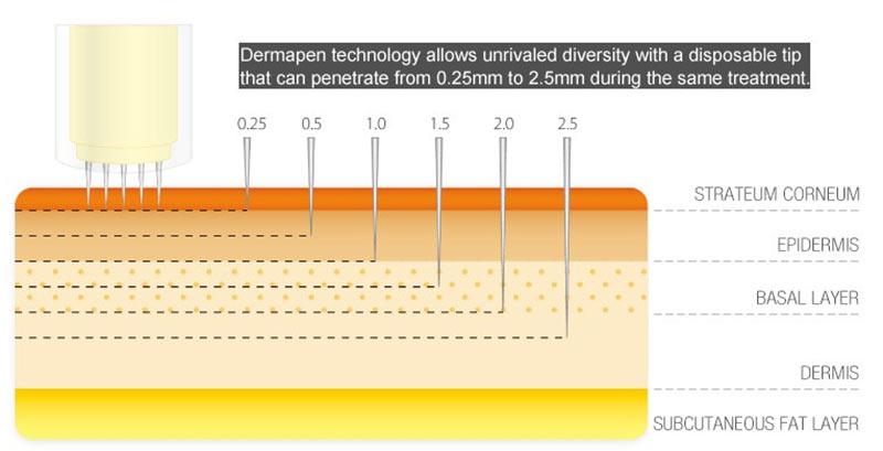 Hautschichten und Microneedling-Eindringtiefe schematisch dargestellt