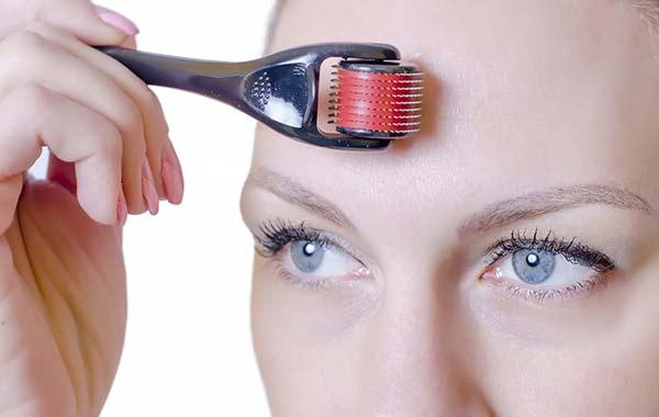 Microneedling Anwendung auf der Stirn