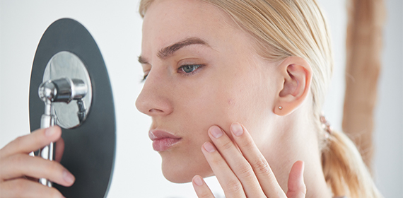 Hautprobleme behandeln mit Stayhealthy